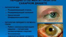 Проблемы с глазами при сахарном диабете
