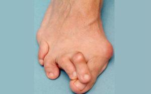 Перекрещивающаяся деформация пальцев