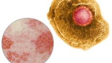 Альфа-герпесвирусы (Alpha-herpesvirinae) - вирус ветряной оспы и опоясывающего лишая