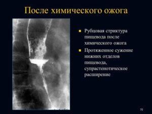 Химические ожоги и рубцовые сужения пищевода