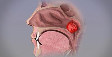 Гипертрофия носоглоточной миндалины (аденоиды)