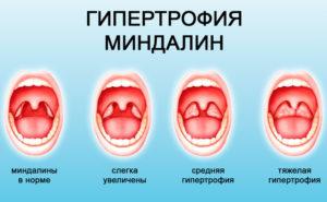 Гипертрофия нёбных миндалин