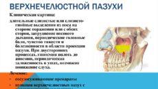Хроническое воспаление верхнечелюстной пазухи