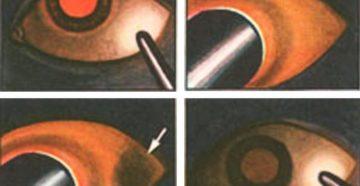 Трансиллюминация и диафаноскопия глазного яблока