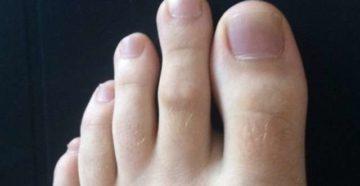 Длинный второй палец - палец Мортона