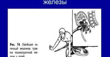 Повреждения поджелудочной железы