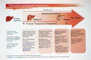 Гепатит С: когда стоит провериться?