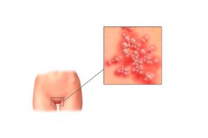 Новые методы лечения генитального герпеса, которые появятся в ближайшее время