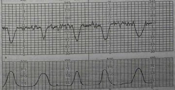 Интранатальная кардиотокография