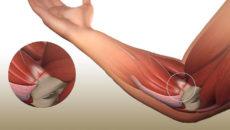 Эпикондилит локтевого сустава