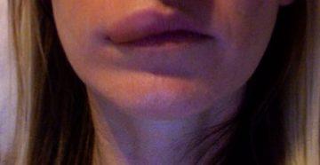 жгут и колят губы, десна, пальцы
