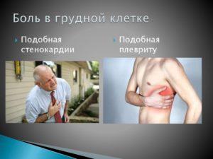 После ангины появились острые боли в грудной клетке