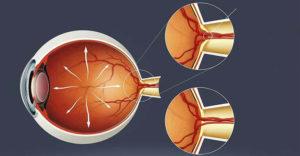 Офтальмогипертензии