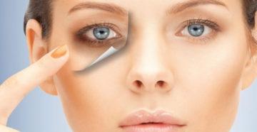 Как убрать синяки под глазами?