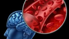 Как улучшить кровообращение мозга?