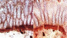 Болезнь Гиршпрунга (аганглионарный мегаколон)