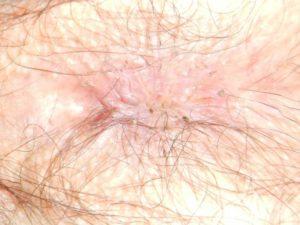 Темный пузырёк в области ануса.