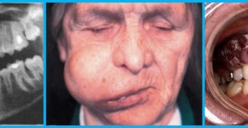 Лекарство от челюстного остеонекроза