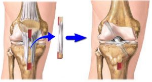 Застарелое частичное повреждение передней крестообразной связки.