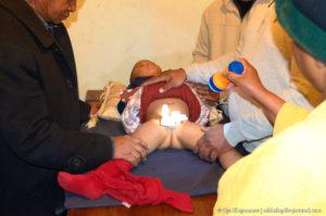 Отек После обрезания у ребенка