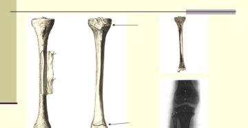 Зоны роста костей