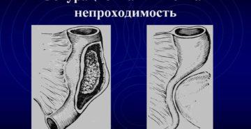 Обтурационная непроходимость кишечника
