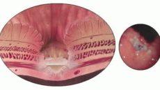 Пенетрация язвы желудка и двенадцатиперстной кишки