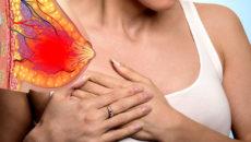 Симптомы болезней у женщин – Грудь