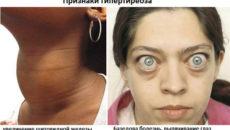 Симптомы болезней у женщин – Глаза