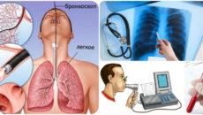 Трахеобронхоскопия