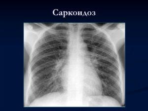 Саркоидоз или туберкулез