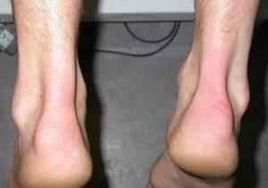 Симптомы болезни - боли в сухожилие