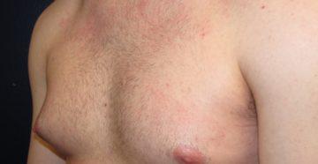 Симптомы болезней у мужчин – Грудь