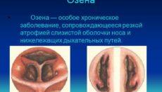 Озена