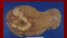 Бактериальные абсцессы печени