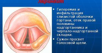Инфильтративный ларингит