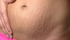 Кожа и волосы женщины после родов