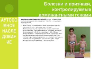 Симптомы болезни - боли при росте у ребенка