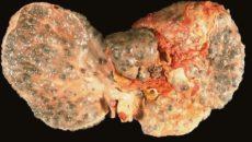 Заболевания, сопровождающие гепатит С