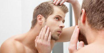 Мужчины и Потеря волос: Каковы Варианты?