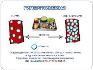 Гипергликемия и сахарный диабет