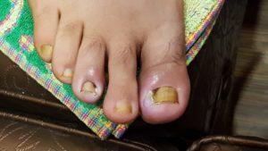 Палец на ноге не заживает!!!!