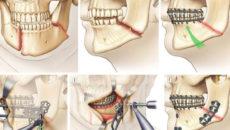 Реабилитация после перелома нижней челюсти