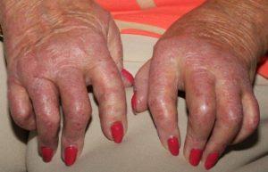 Альтернативные методы лечения артрита