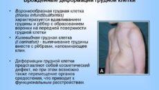 Врожденные деформации грудной клетки