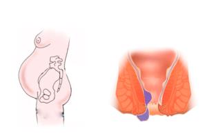Проблемы после родов с прямой кишкой